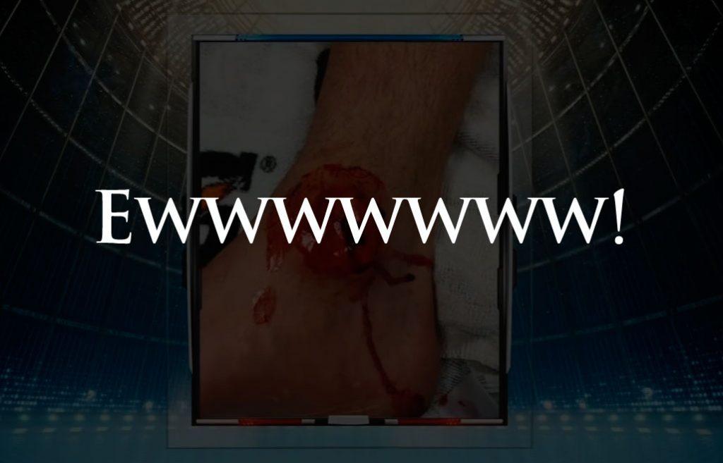 Matt Hendricks Suffers Another Gruesome Injury (Warning